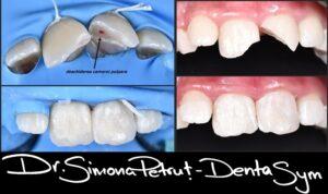 Recondtrucția unei fracturi prin lipirea fragmentelor dentare